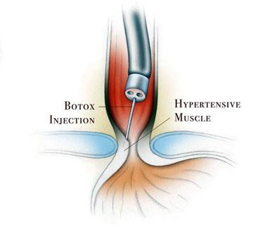 botulinum toxin spasticitis)
